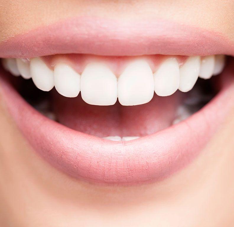 Clínicas Reydental - Carillas dentales