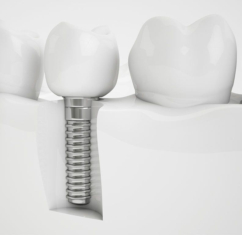 Clínicas Reydental - Implantes dentales