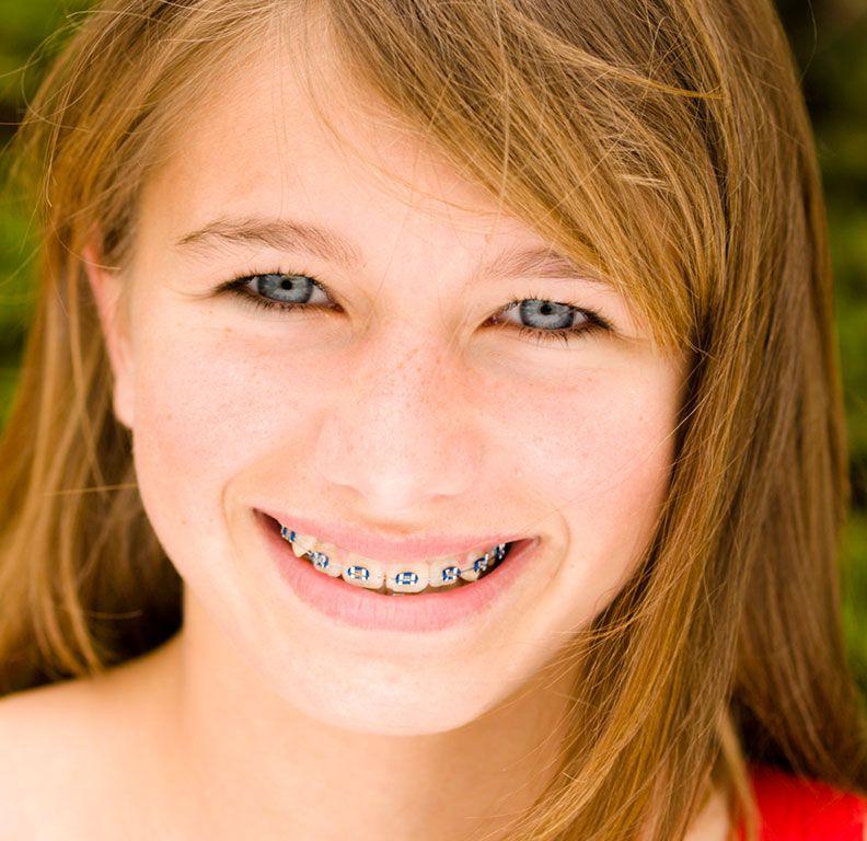 Clínicas Reydental - Ortodoncia funcional